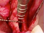 Horizontal Augmentation Through the Ridge-Split Procedure: A Predictable Surgical Modality in Implant Reconstruction