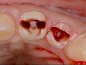 "The Esthetic Reconstructive TRIAD: ""GBR, GTR and Tissue Molding"""