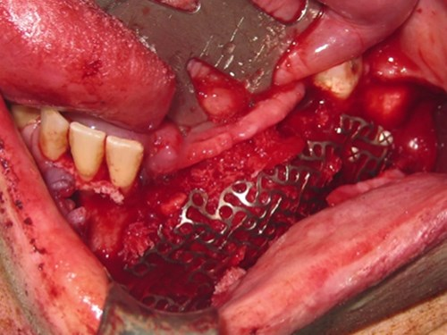 Alternative & New Tendencies for Alveolar Reconstruction in Modern Implant Dentistry