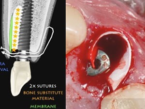 A Novel Surgical-Prosthetic Approach to Optimize Peri-Implant Tissue Esthetics