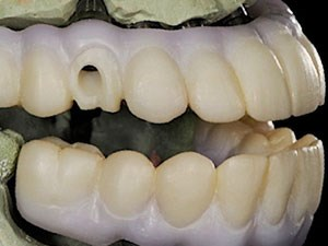 Monolithic Solid Zirconia Full Arch Restorations Today