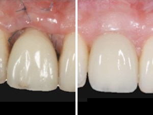 From Extraction to Prosthetic Restoration: Considerations for the Esthetic Zone