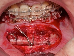 Merging Orthodontics & Esthetic Dentistry for the Anterior Zone. A Complete Clinical & Laboratory Perspective - Part 2 of 2