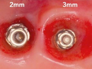 Maximizing Aesthetics on Adjacent Implants and Full Arch Reconstructions - Part 1 of 2