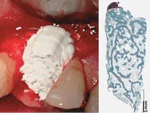 Bone Graft Cements: A New Advance to Augmentation Solutions