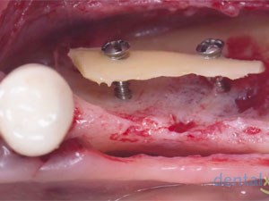 "The Reconstruction of a ""Critical Size"" 3D Bone Defect Utilizing the Khoury Bone Plate Technique"