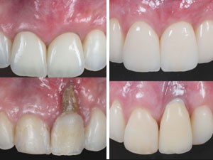 Esthetic Tissue Reconstruction Around Implants - Part 1 of 2