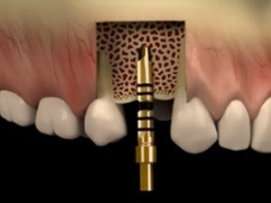 Immediate Implant Dentistry: A Predictable & Routine Treatment