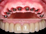 Full Arch Implant Dentistry Utilizing the Easy Guide System (FAST Guide)