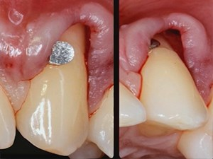 Minimally Invasive Approaches for Managing Deficient Sites in Esthetic Implant Dentistry