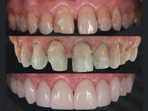 Fully Digital Workflow Applied to Minimally Invasive Cosmetic Dentistry