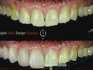 The Clinical Relevance of Digital Dentistry & 3D Technologies