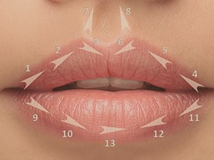 Facial Rejuvenation: Using Botox & Fillers as Support of the Oral Rehabilitation & Lips Enhancement