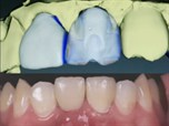 In-Office CadCam Integrated Esthetic Implant Dentistry