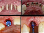 Modern Implant Dentistry: Rules of Engagement in the Esthetic Zone - Part 1 of 2