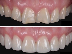 Minimally Invasive Restorative Veneers; Importance of Wax-Up