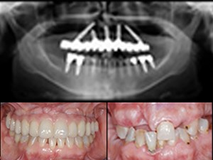 Treating the Terminal Dentition: A Patient-Center Approach