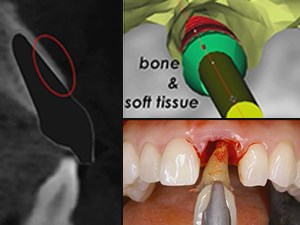 Modern Implant Dentistry: Rules of Engagement in the Esthetic Zone - Part 2 of 2