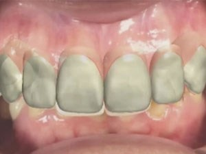 Digital Smile Design and 3D Printing of Treatment Provisionals in Modern Dental Practice