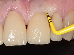Prevention & Therapy of Biological Complications in Implant Dentistry