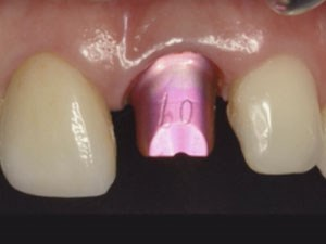 Achieving Esthetic Results Through Restorative Solutions in Implant Dentistry