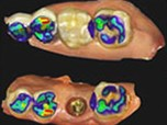 The Changing Paradigm of Digital Implant Dentistry: Today's Technology and Tomorrow's Concepts - Part 1 of 2
