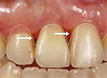 Improving Interdental Papillae in Implant Therapy. Perio-Prosthetic Approach