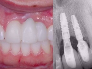 Soft Tissue Management Around Dental Implants