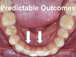 GPs: Best Suited to Deliver Orthodontics?