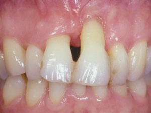 Esthetic Management for Compromised Extraction Sites - Part 2 of 2