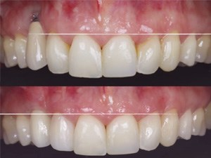 Gingival Recessions Around Teeth & Implants - Clinical Approach