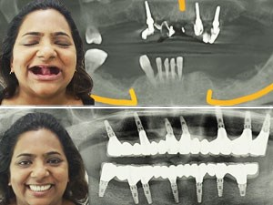 Management of the Full Arch Edentulous Patient: Team India Approach