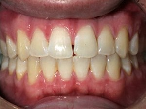 Closing the Midline Diastema