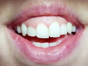 The Innovative New Lip Stabilization Technique (LipStaT): Treating a Gummy Smile