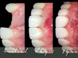 In the Transition Line; Between the Prosthodontics of Today & Tomorrow