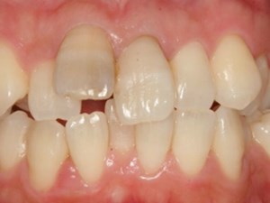 Combination Therapies in the Esthetic Zone: Steps for Success