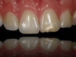 Minimal Intervention in Cosmetic Dentistry