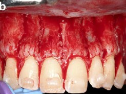 Decision Making for Soft and Hard Tissue Augmentation in Surgically Facilitated Orthodontics