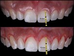 Laser in Periodontal Plastic Surgery