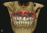 The Rise of CBCT; The Changing Face of Digital Dentistry