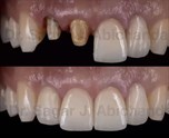 Shade Taking Protocols in Indirect Restorations