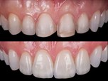 Ultraconservative Approach with Porcelain Veneers