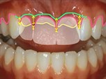 The Importance of Facially Driven Smile Design in Modern Comprehensive Dentistry