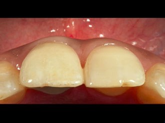 Tooth Replacement in the Anterior Zone - High Esthetic Risk Profile Case