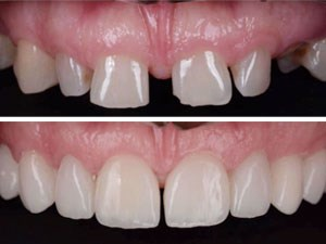 Esthetic Zone Combination Cases Utilizing Partial Extraction Therapy