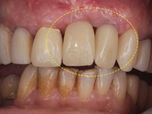 Central-Lateral Dilemma for Immediate Implant Placement
