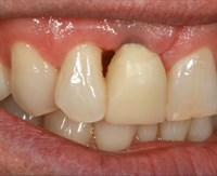 Implant Risks, Complications, and Solutions in the Esthetic Zone - Part 2 of 3