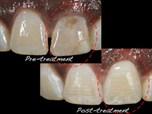 Implant Risks, Complications, and Solutions in the Esthetic Zone - Part 3 of 3