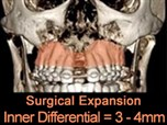 Expanding on Transverse Diagnosis and Maxillary Expansion