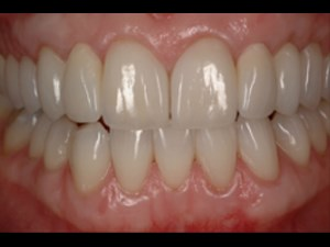 Replicating Nature with Restorative Dentistry-Pt 2